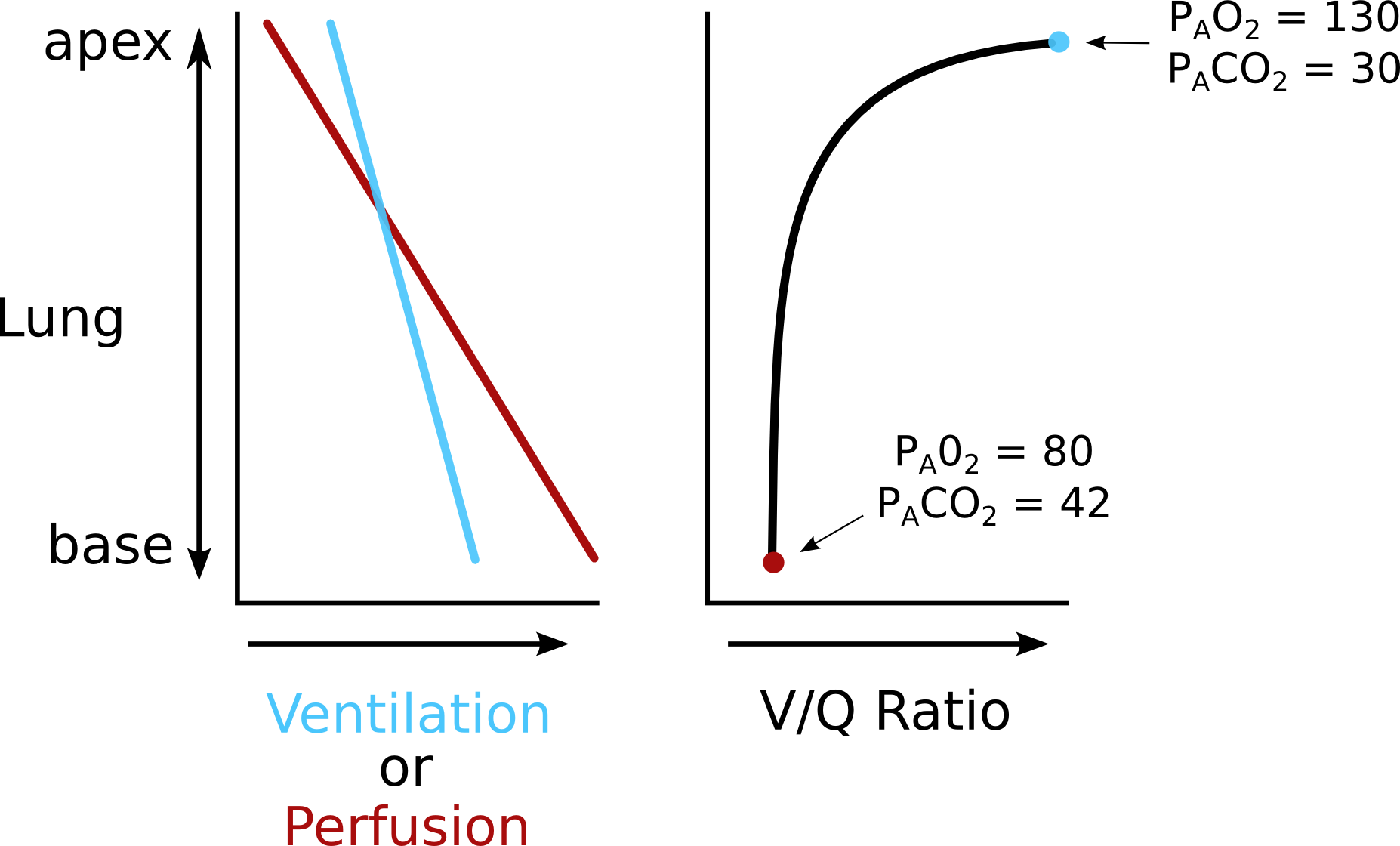 ventilation-perfusion ratio distribution | pathway medicine